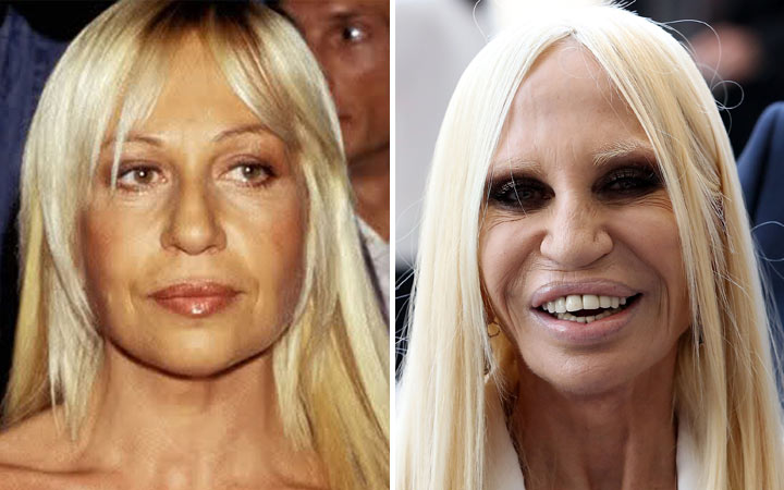 Donatella Versace before and now